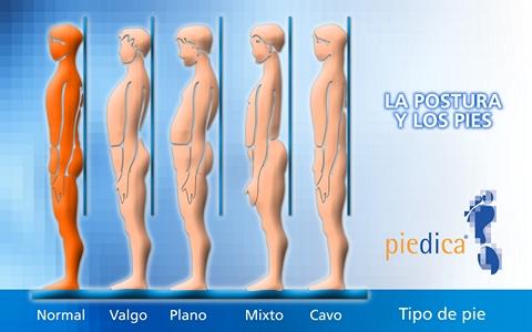 POSTURAS, TIPO DE PIE